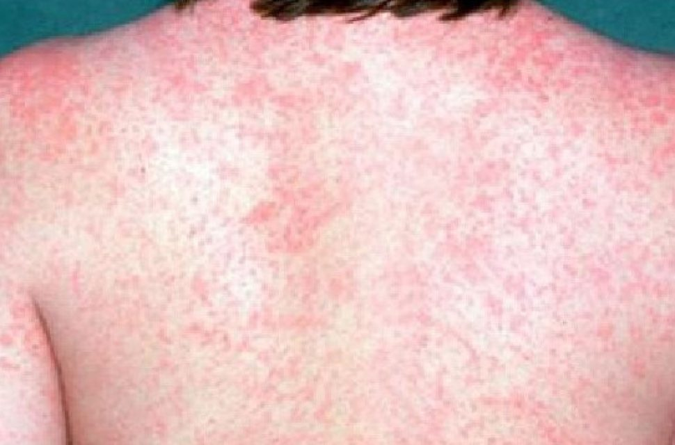 MMR vaccination call following increase in confirmed measles cases in Gloucestershire